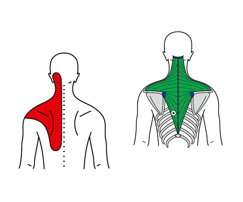 TriAS-Triggerakupunktur CMC