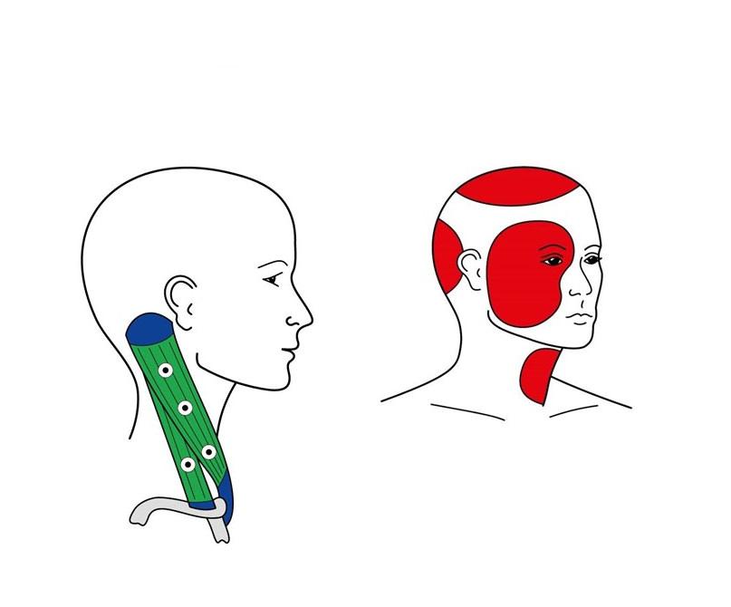 TriAS-Triggerakupunktur Corzilius